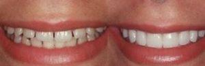 cosmetic dentist Adelaide