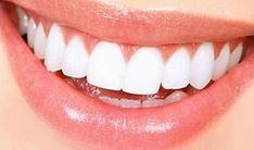 Best Teeth Whitening Adelaide
